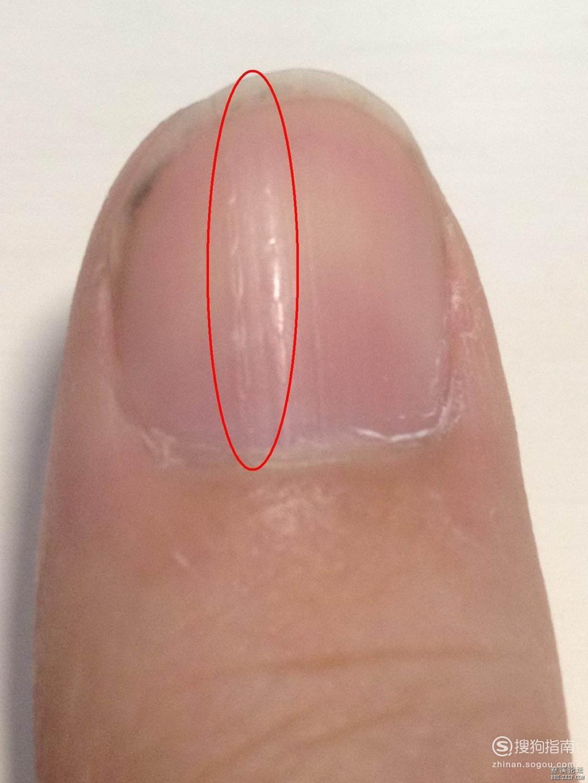 指甲上有横纹是怎么回事