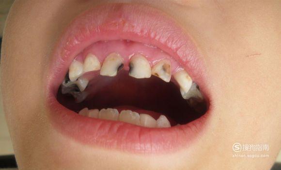 儿童龋齿高发,如何预防宝宝龋齿?